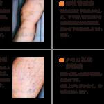 足の血管がボコボコ?静脈瘤の原因と対策法とは